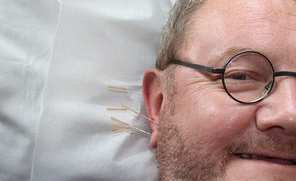 Какво е Аурикулотерапия