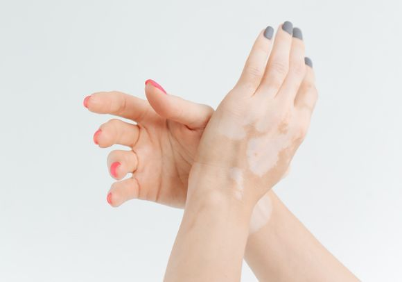 anti-vitiligo bell