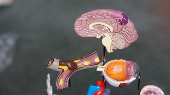 алцхаймер антиоксиданти деменция