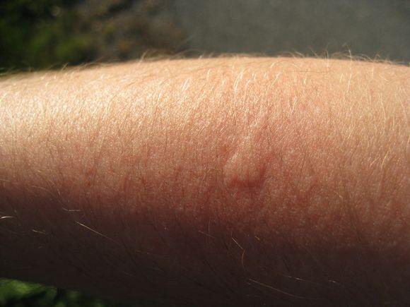 Ухапване от комар. Credit: Johan, flickr